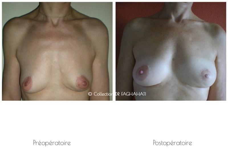Chirurgien esthétique Lyon, chirurgie esthétique Lyon